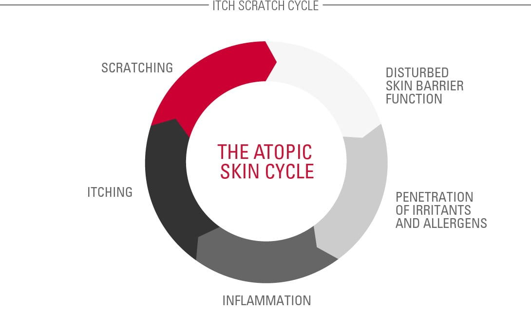 The Atopic Skin Cycle (also known as the Itch-Scratch Cycle)