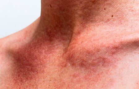 Photograph of redness on a man's neck.